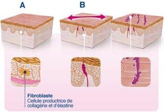 Formation et apparition de vergetures sur les cuisses, fesses, hanches ou encore ventre