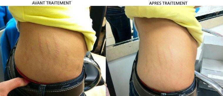 Résultats avant-après le traitement Nu Skin Galvanic Spa 2 sur l'élimination des vergetures